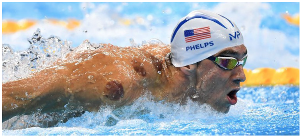 phelps cupping.png